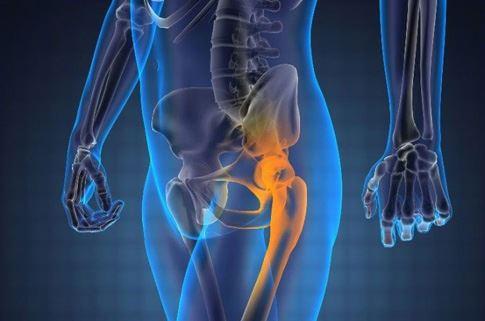 Метастазы рака в кости-2