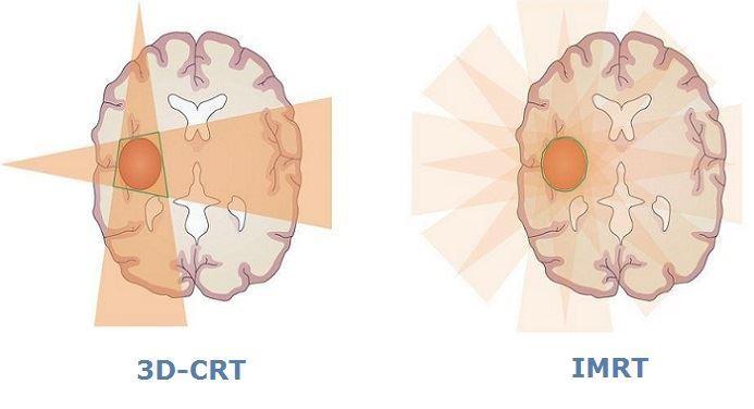 Каньоны для лучевой терапии