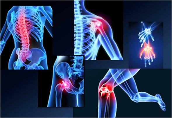 Метастазы рака в кости
