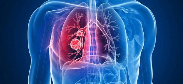Метастазы при раке легких-4