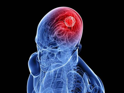 Метастазы в головном мозге-2
