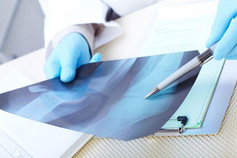 Метастазы рака в кости-5